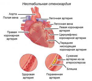 Магнит для лечения суставов