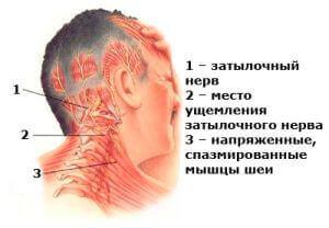 Боль при невралгии затылочного нерва