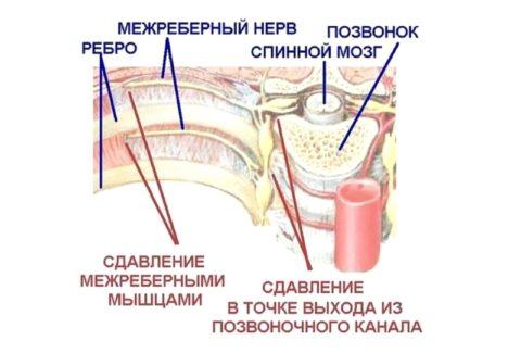 Невралгия