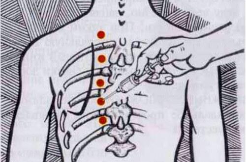 болит спина кружится голова подташнивает