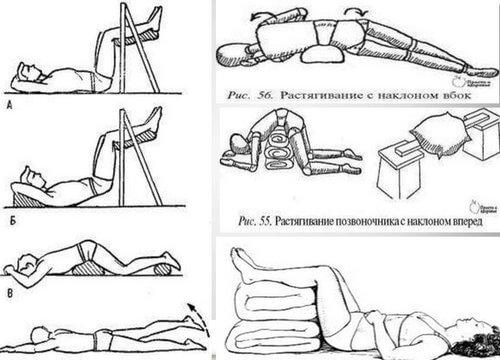 помощь при остеохондрозе поясничного отдела