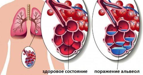 Образование экссудата в альвеолах при поражении легких респираторной инфекцией