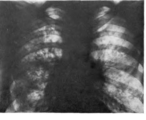 Очаговая пневмония на рентгенограмме