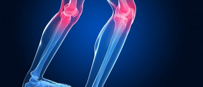 Причины и лечение околосуставного остеопороза