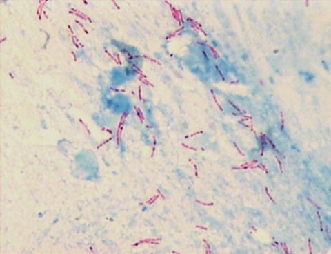 Окраска материала по Цилю-Нильсену. Красным цветом обозначены микобактерии.