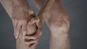 Симптомы и лечение анкилозирующего спондилита