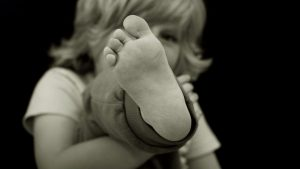Вальгусная деформация стопы у ребенка