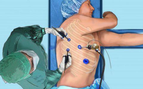 Операцию предпочтительнее проводить торакоскопическим методом (на фото)