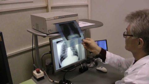 Описание снимка с определением наличия или отсутствияизменений в легких выполняет врач – рентгенолог