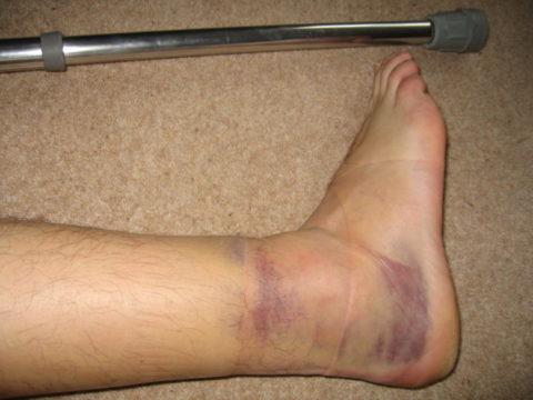 Опухоль после повреждения костных и мягких тканей наиболее выражена на нижних конечностях.