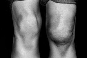 Болит коленный сустав при сгибании и разгибании