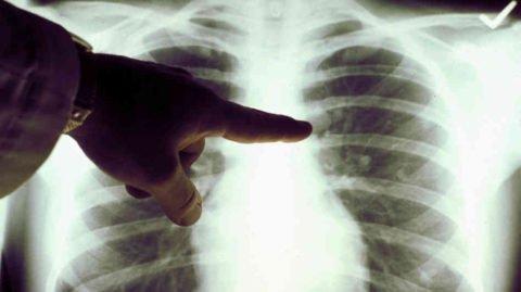 Опытный рентгенолог сможет выявить болезнь на ранней стадии.