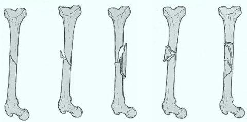 Основные параметры для определения вида нарушения костной целостности в организме