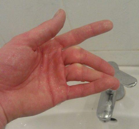 Основные признаки повреждения среднего пальца на руке