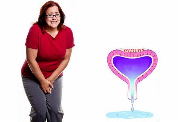Причины и эффективные методы лечения женского энуреза