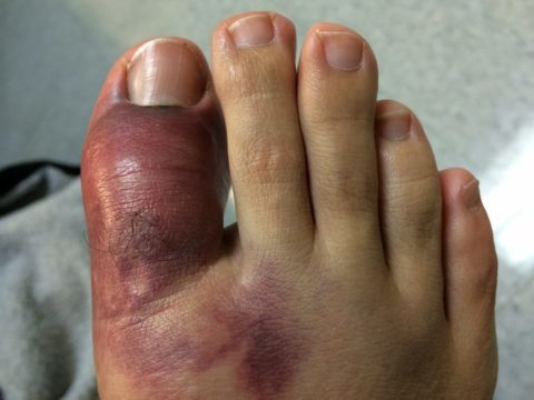 Особенности анкилоза после травмы пальца стопы