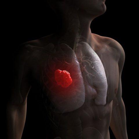 Особенности прогрессирования мелкоклеточного рака легких.