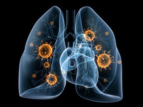 Особенности протекания грибковой пневмонии.