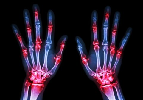 Особенности реабилитационной разработки функциональности руки после перелома