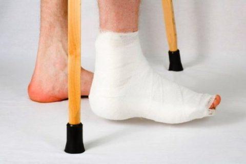 Особенности восстановительного периода при переломе пяточной кости