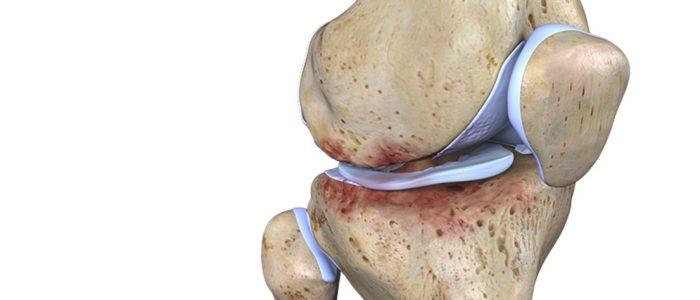 Клинические рекомендации при остеоартрозе