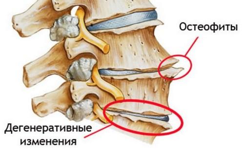 Остеофиты одна из причин болей в пояснице