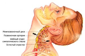 Мовалис от остеохондроза
