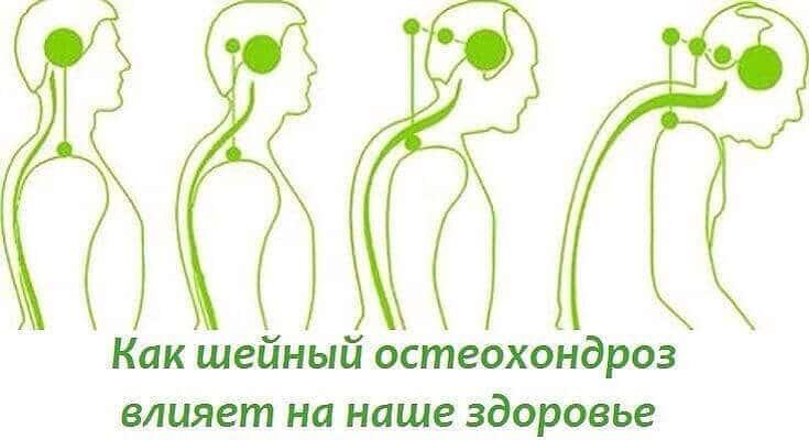 Как остеохондроз влияет на жизнь