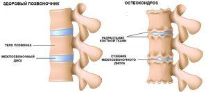 Крем Шунгит для лечения суставов