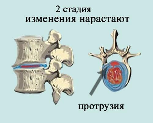 остеохондроз поясничного отдела 2 стадии