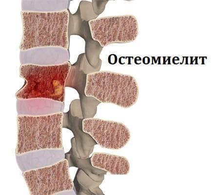 Что такое Остеомиелит