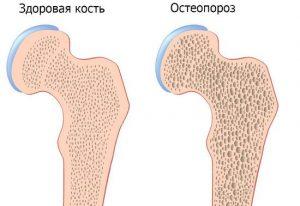 Болят суставы при климаксе