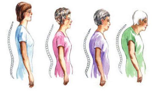 Остеопороз и боль в спине по утрам