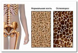 Щитовидная железа и заболевания суставов