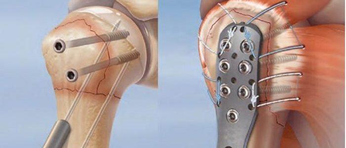 Остеосинтез плеча