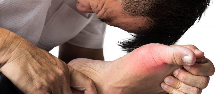 Подагрическое воспаление