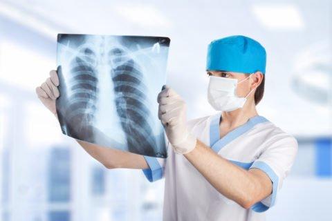 Острый бронхит на рентгене сложно отличить от другого воспалительного заболевания.