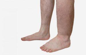 Боли в области голени