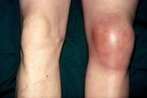 Хондроматоз колена