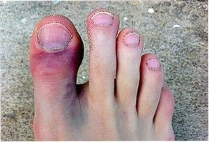 Перелом большого пальца ноги