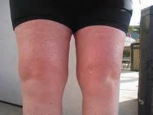 Гонартроз и другие заболевания суставов