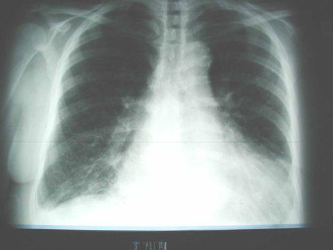 Отек легочной ткани хорошо видно на рентгене