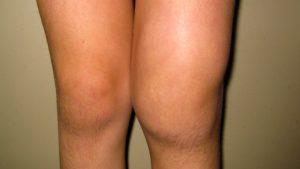 Симптомы и лечение экссудативного синовита