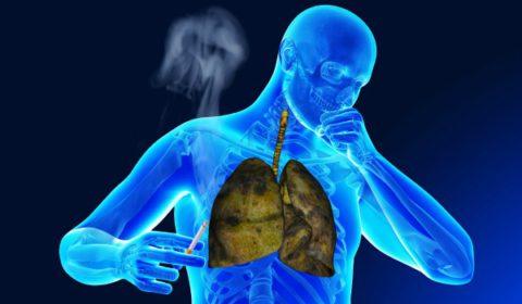 Отказ от курения увеличит результативность лечения любого вида заболевания.