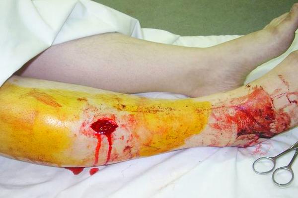 Наличие поврежденных тканей в области удара