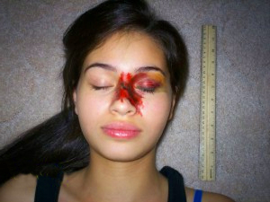 Сколько заживает перелом носа, каким образом ускорить процесс выздоровления