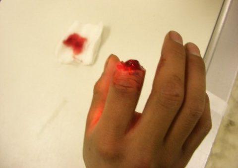 Открытый вид повреждения фаланги на руке