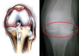 Хондрокальциноз сустава колена