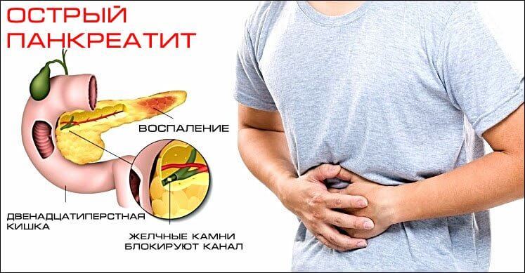 Панкреатит и боль в спине
