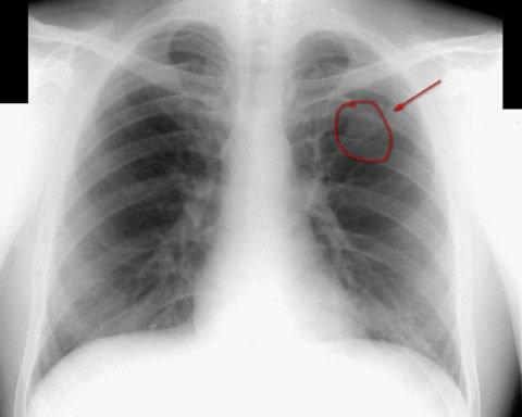 Параканрозная пневмония на рентгене